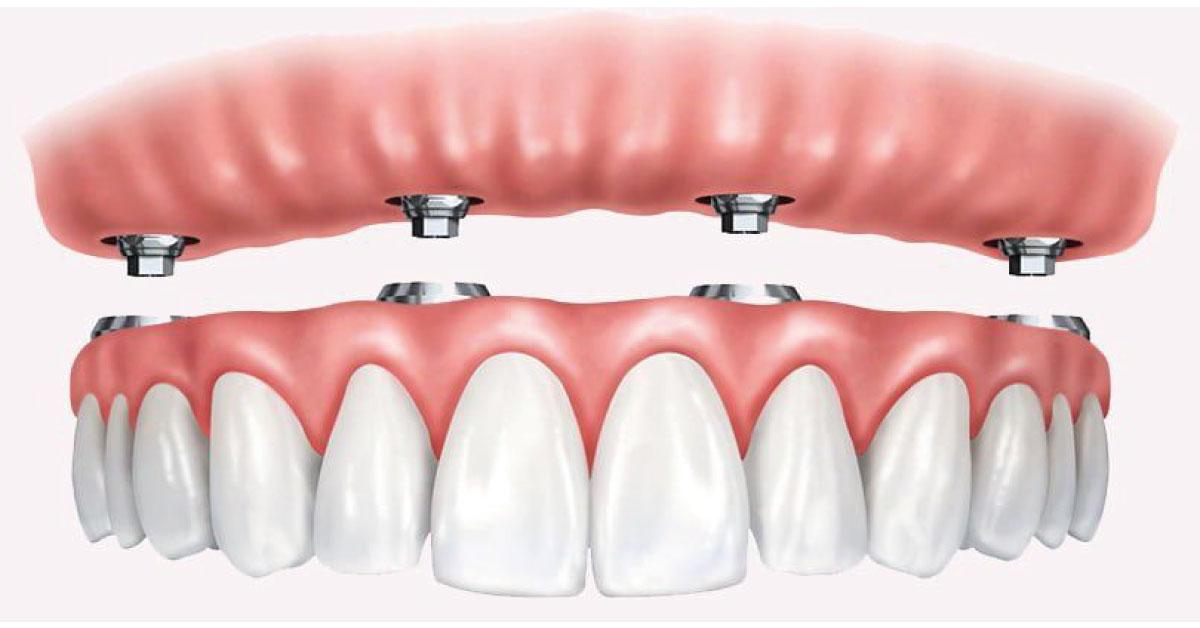 https://dentcraft.com.tr/all-on-four-implant/
