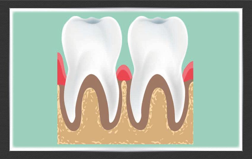 Diş Eti Tedavisi