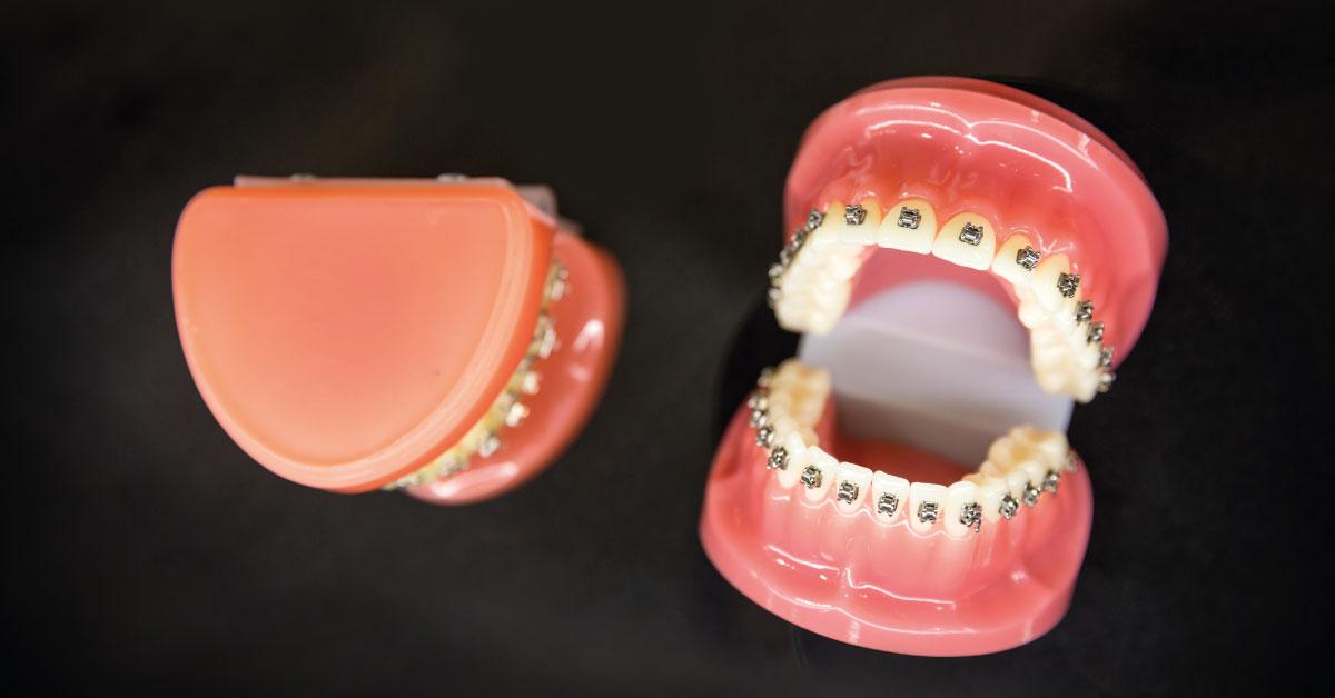 https://dentcraft.com.tr/ortodonti-tedavisi-sirasinda-dikkat-edilmesi-gerekenler/