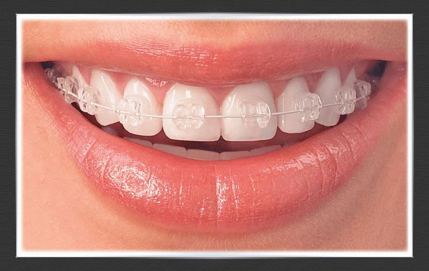 Porselen Diş Teli