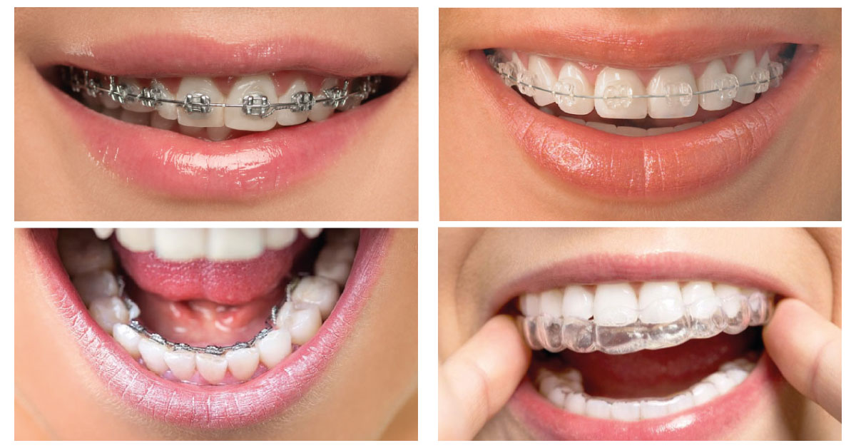 Ortodonti Tedavi Süresi